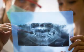 Extracting Teeth – The Last Resort