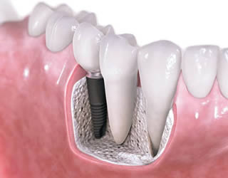 implant tooth replacement