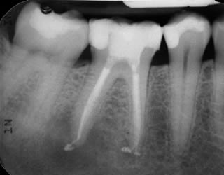 root canal work