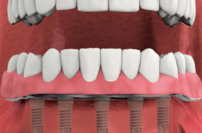 Problematic Dentures? – Now Might Be The Right Time To Replace Them