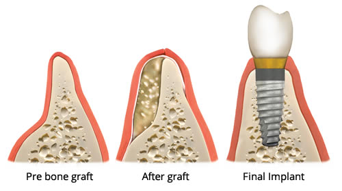 Bone Health For Successful Dental Implants