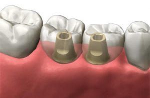 double dental implant
